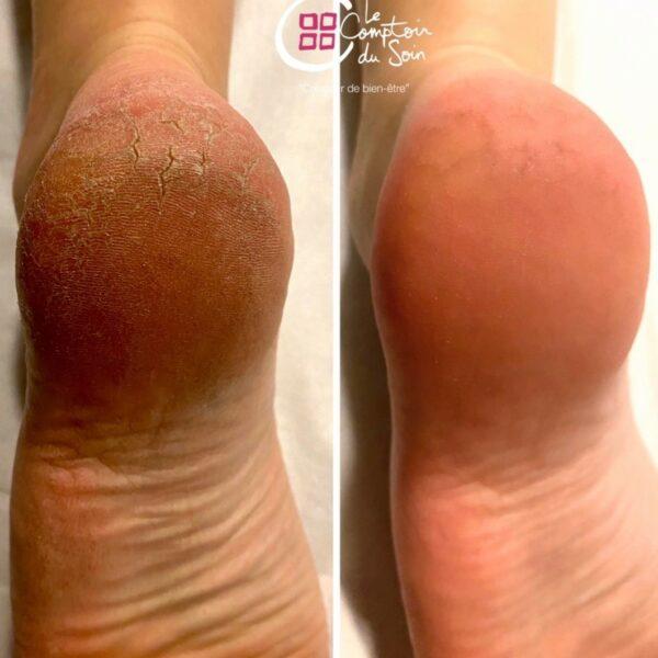 Beauté des pieds + Calluspeeling